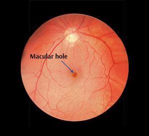 Macular Hole St  Leonards | Vitrectomy Surgery | Vision